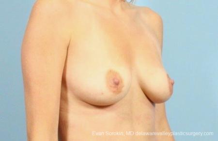Philadelphia Breast Augmentation 8782 - Before Image 2