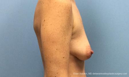 Philadelphia Breast Lift and Augmentation 10814 - Before Image 3