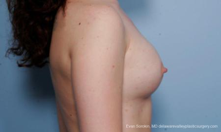 Philadelphia Breast Augmentation 9176 -  After Image 5