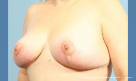 Philadelphia Breast Reduction 9430 -  After Image 2