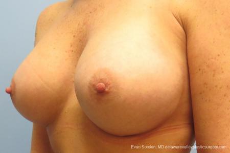 Philadelphia Breast Augmentation 9406 -  After Image 4