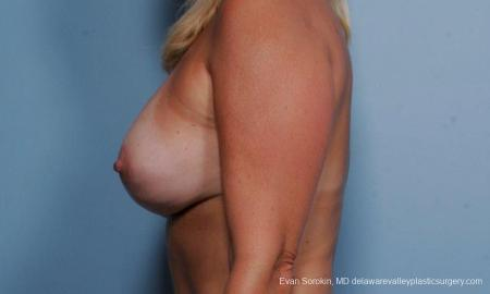 Philadelphia Breast Lift and Augmentation 9375 -  After Image 5