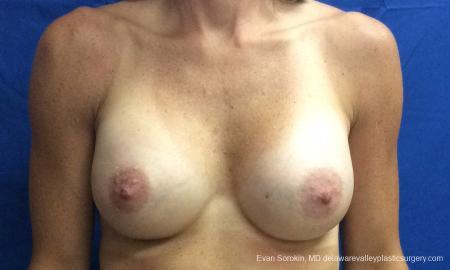 Philadelphia Breast Augmentation 10248 -  After Image 1