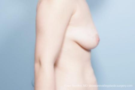 Philadelphia Breast Lift and Augmentation 8680 - Before Image 4