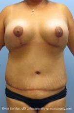 Philadelphia Mommy Makeover 8676 - After Image
