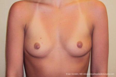 Philadelphia Breast Augmentation 8772 - Before Image