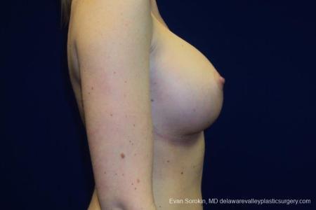 Philadelphia Breast Augmentation 8670 -  After Image 4
