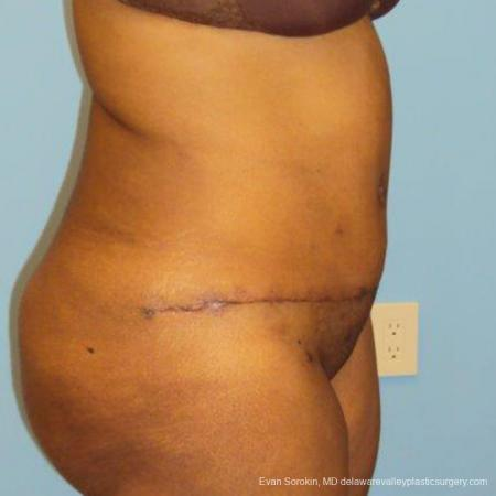 Philadelphia Abdominoplasty 9472 -  After Image 3