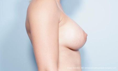Philadelphia Breast Augmentation 9296 -  After Image 3