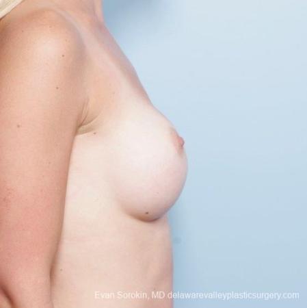 Philadelphia Breast Augmentation 8652 - Before Image 4