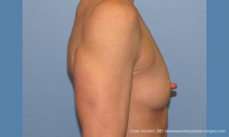 Philadelphia Breast Augmentation 9744 - Before Image 3
