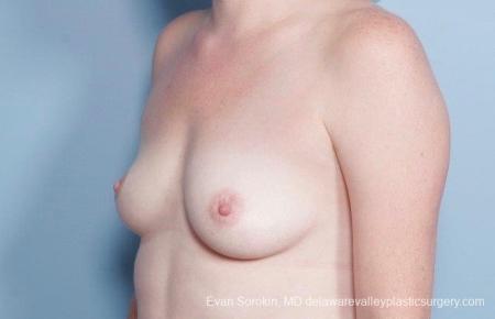 Philadelphia Breast Augmentation 8795 - Before Image 3