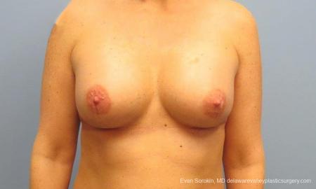 Philadelphia Breast Augmentation 9487 -  After Image 1