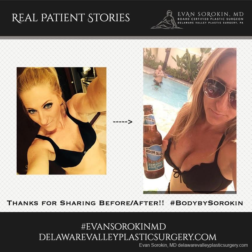 Real Patient Stories: Patient 22 - Before and After 1