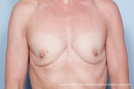 Philadelphia Breast Augmentation 9415 - Before Image 1