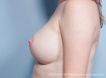 Philadelphia Breast Augmentation 8795 -  After Image 5