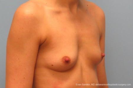 Philadelphia Breast Augmentation 8763 - Before Image 2