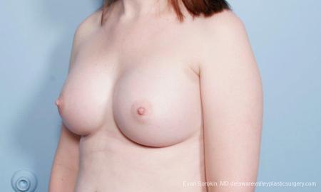 Philadelphia Breast Augmentation 9418 -  After Image 4