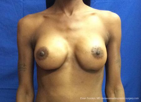 Philadelphia Breast Augmentation 13072 -  After 1