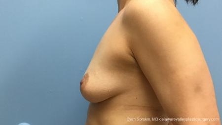 Philadelphia Breast Augmentation 12541 - Before and After Image 5