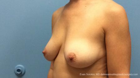 Philadelphia Breast Lift and Augmentation 13179 - Before Image 4
