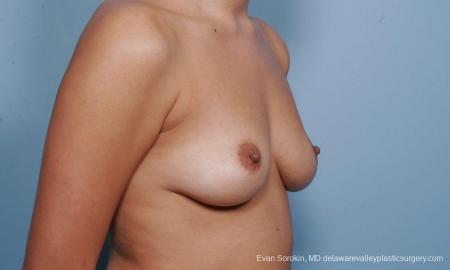 Philadelphia Breast Augmentation 9373 - Before Image 2
