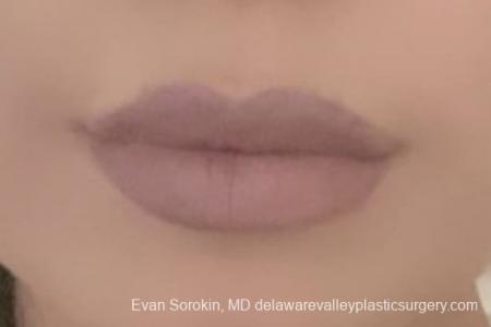 Lip Augmentation: Patient 6 - After Image 2