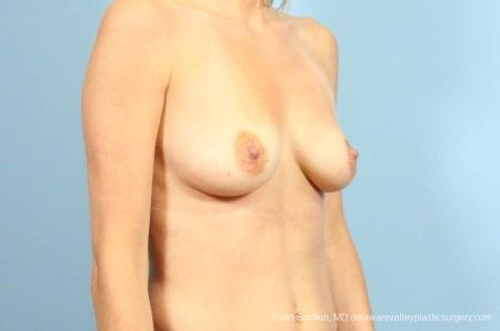 Philadelphia Breast Augmentation 9105 - Before Image 2
