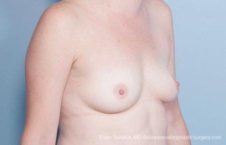 Philadelphia Breast Augmentation 8795 - Before Image 2