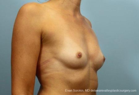 Philadelphia Breast Augmentation 8764 - Before Image 2