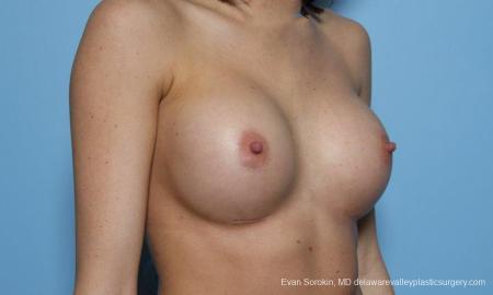 Philadelphia Breast Augmentation 9421 -  After Image 2