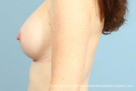 Philadelphia Breast Augmentation 8662 -  After Image 5
