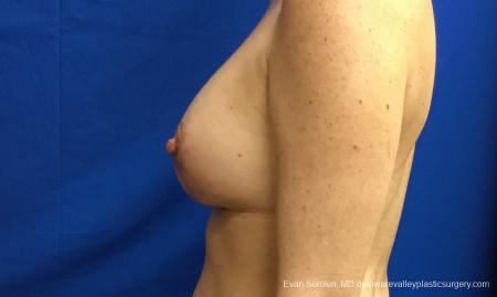 Philadelphia Breast Lift and Augmentation 10814 -  After Image 5