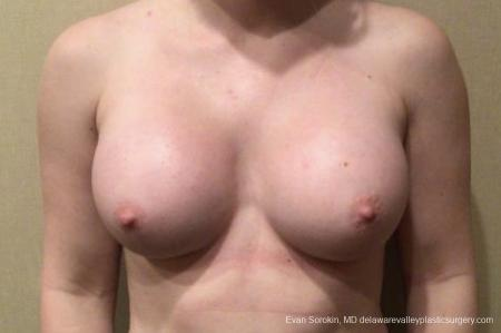 Breast Augmentation: Patient 163 - After Image 1