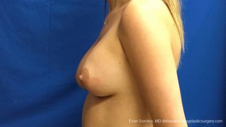 Philadelphia Breast Augmentation 12540 -  After Image 5