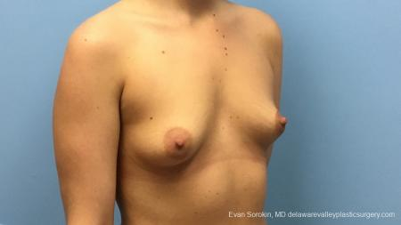 Philadelphia Breast Augmentation 12540 - Before Image 2