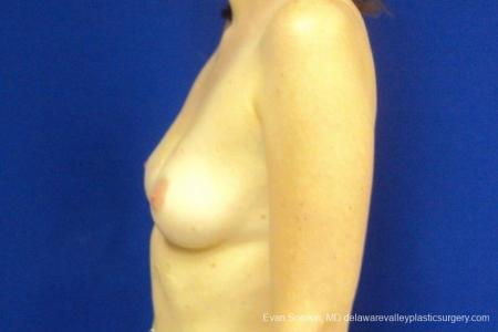 Philadelphia Breast Augmentation 8776 - Before and After Image 5