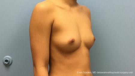 Philadelphia Breast Augmentation 13183 - Before Image 2