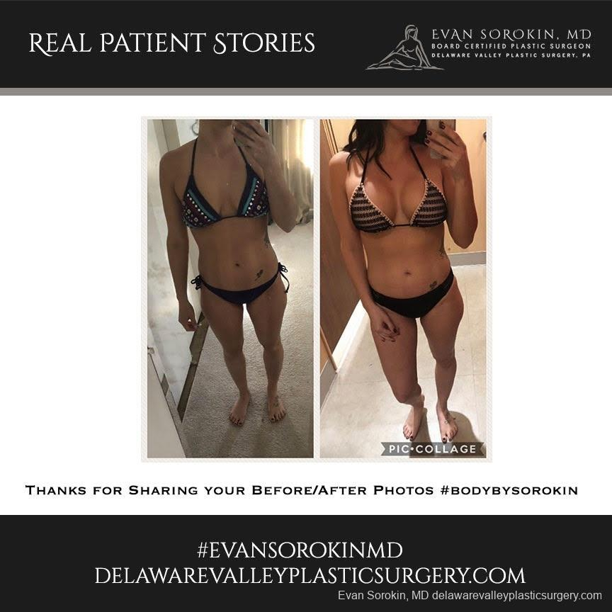 Real Patient Stories: Patient 1 - Before and After Image 1