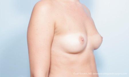 Philadelphia Breast Augmentation 9303 - Before Image 2