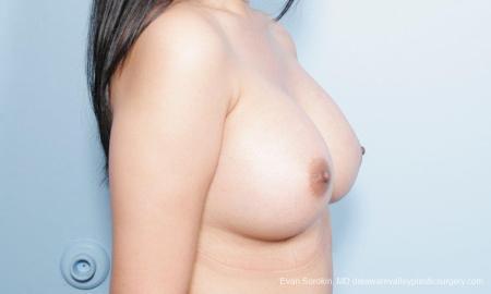 Philadelphia Breast Augmentation 9298 -  After Image 2