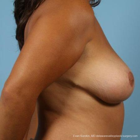Philadelphia Breast Reduction 9470 -  After Image 5