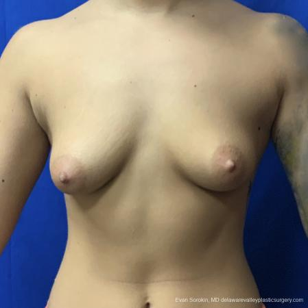 Breast Lift And Augmentation: Patient 43 - Before Image 1
