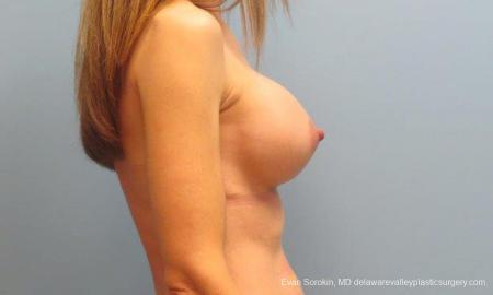 Philadelphia Breast Augmentation 9368 -  After Image 3