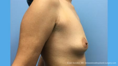 Breast Augmentation: Patient 137 - Before and After Image 5