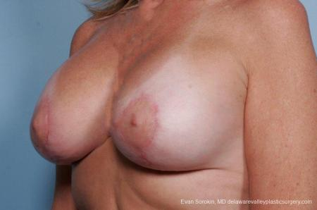Philadelphia Breast Lift and Augmentation 9438 -  After Image 4
