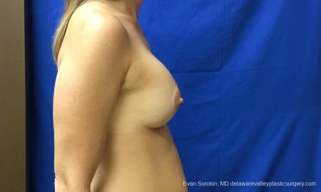 Philadelphia Breast Augmentation 12519 -  After Image 4