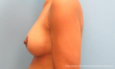 Philadelphia Breast Lift and Augmentation 9343 -  After Image 5