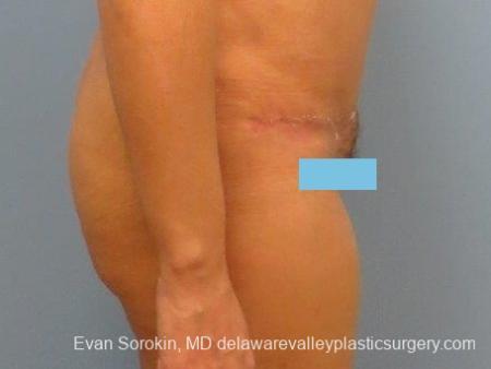 Philadelphia Abdominoplasty 8672 -  After Image 5