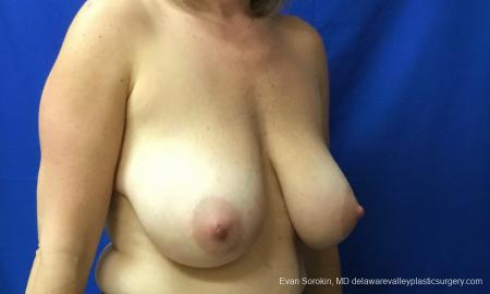 Philadelphia Breast Reduction 12512 - Before Image 2